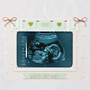 2020 Worth the Wait Sonogram Photo Frame Ornament
